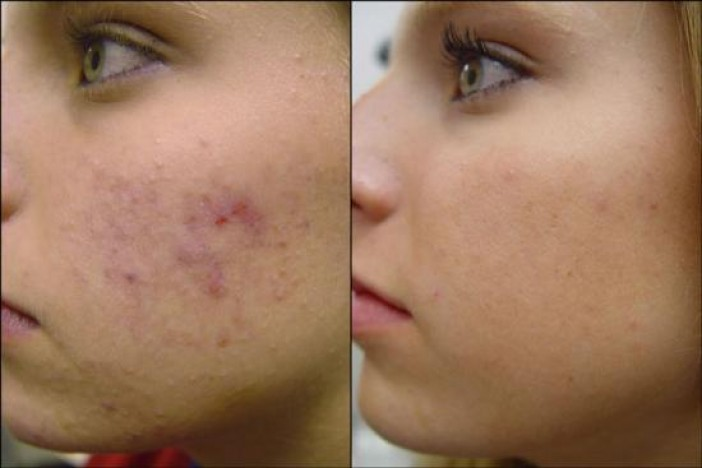 Before And After Microdermabrasion Skin Care Brazilian And Bikini
